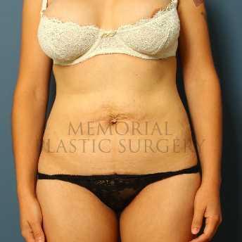 Memorial Plastic Surgery Clear Lake