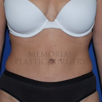 Memorial Plastic Surgery Clear Lake